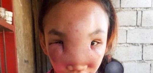 Дівчина почала втрачати зір від таємничої хвороби, після того як вичавила на носі прищ…